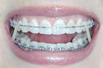 Clean braces