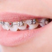 Metal Braces on teeth