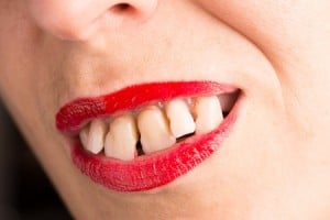 Spacing of Teeth - Orthodontic Treatment - Stongville Orthodontics
