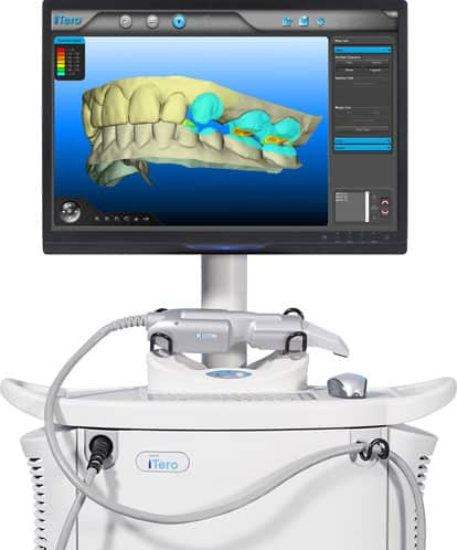 iTero-IOC Monitor for Invisalign