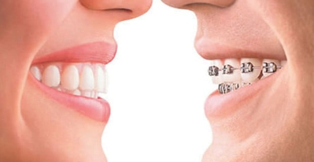 Invisalign - Types of Appliances