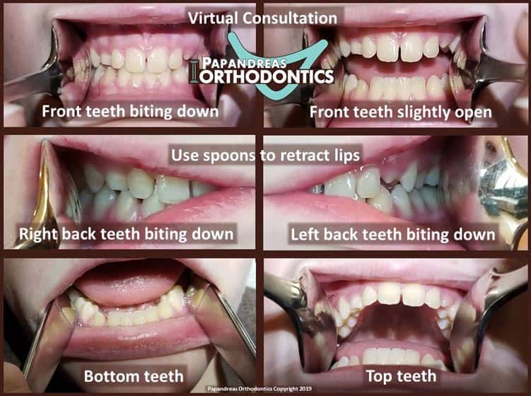 virtual orthodontist consult example